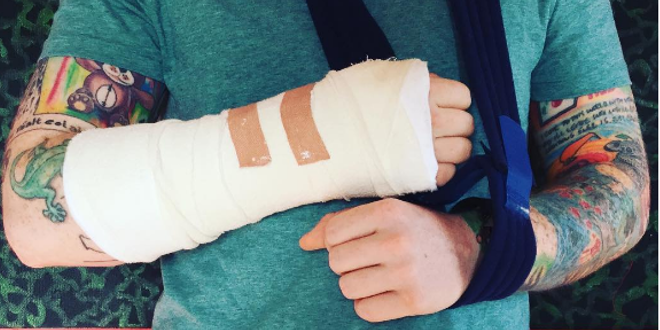 Ed Sheeran Breaks Arm In Bicycle Accident 101 9 Fm The